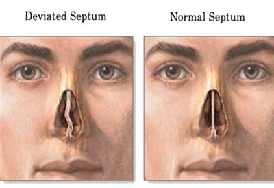 nasal-septum-deviated-crop-u5363